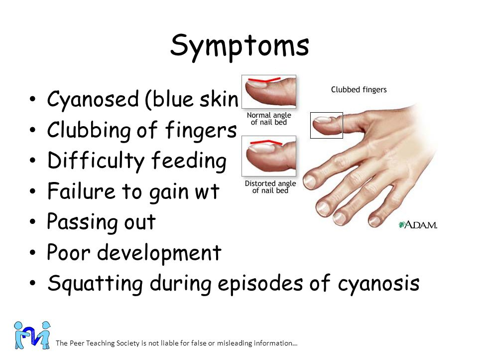 Symptoms Cyanosed (blue skin) Clubbing of fingers Difficulty feeding Failure to gain wt Passing out Poor development Squatting during episodes of cyan