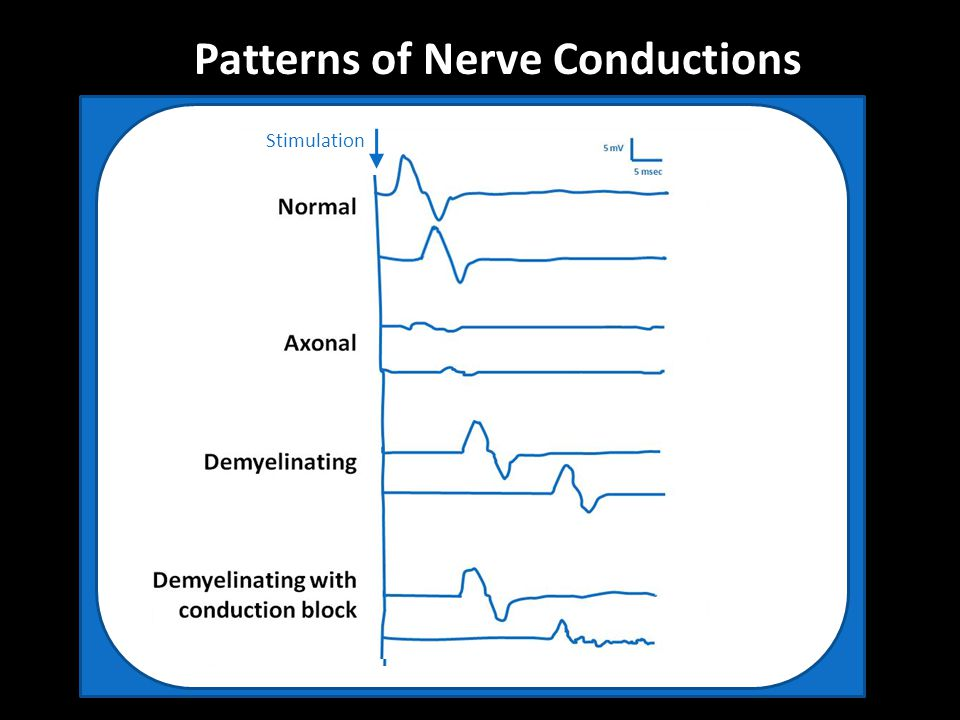 Patterns of Nerve Conductions Stimulation