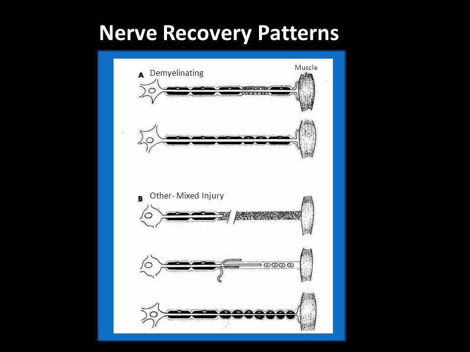 Nerve Recovery Patterns Muscle Demyelinating Other- Mixed Injury