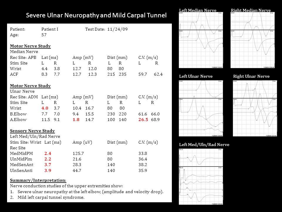 Patient:Patient I Test Date:11/24/09 Age:57 Motor Nerve Study Median Nerve Rec Site: APBLat (ms)Amp (mV) Dist (mm)C.V.