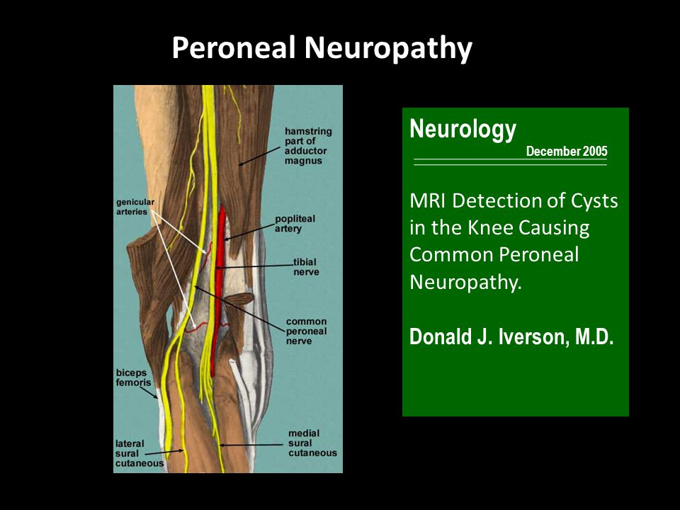 Peroneal Neuropathy Neurology December 2005 MRI Detection of Cysts in the Knee Causing Common Peroneal Neuropathy. Donald J. Iverson, M.D.