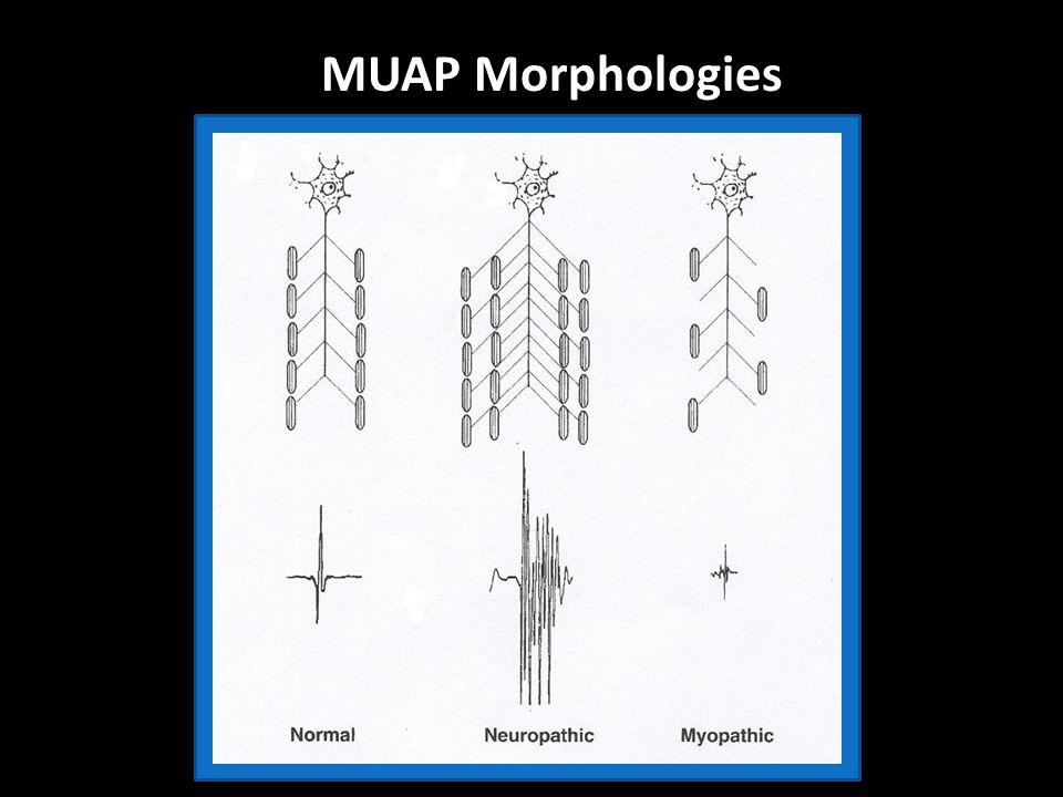 MUAP Morphologies
