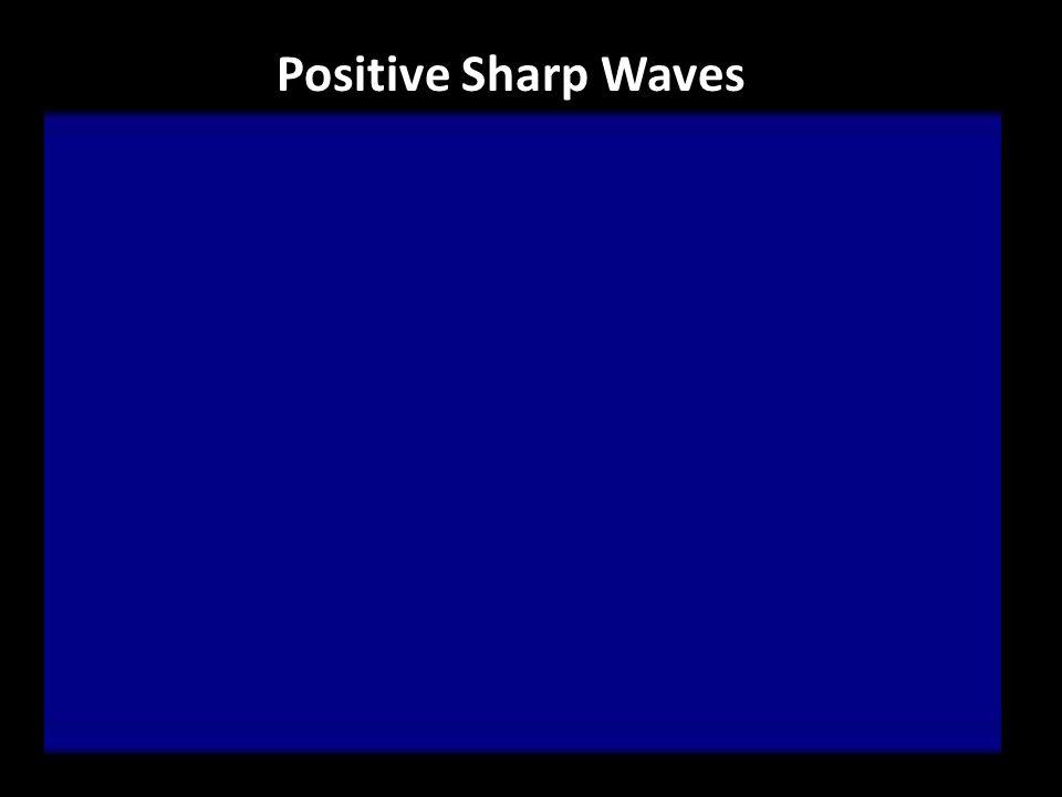 Positive Sharp Waves