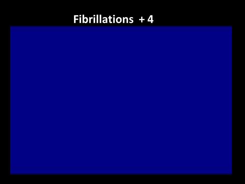 Fibrillations + 4
