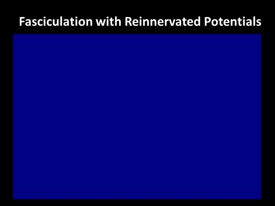 Fasciculation with Reinnervated Potentials