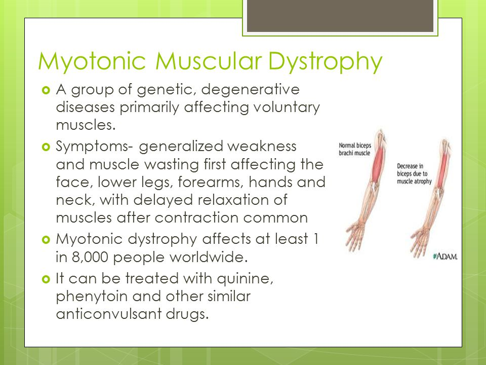 Myotonic Muscular Dystrophy  A group of genetic, degenerative diseases primarily affecting voluntary muscles.  Symptoms- generalized weakness and mu