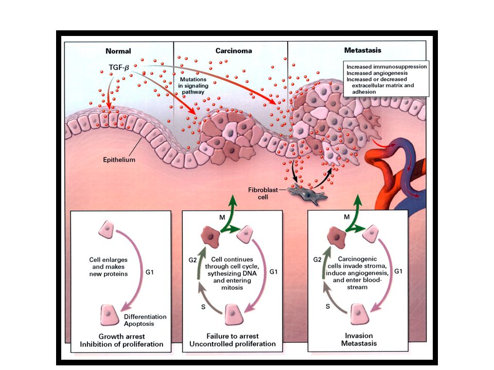 Role of TGF-  in Human Cancer