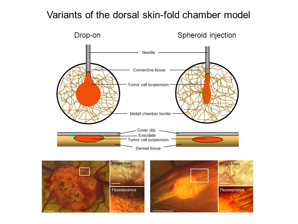 Drop-onSpheroid injection Variants of the dorsal skin-fold chamber model