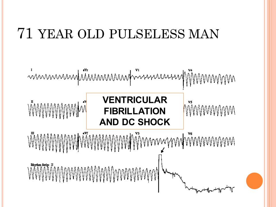 71 YEAR OLD PULSELESS MAN VENTRICULAR FIBRILLATION AND DC SHOCK