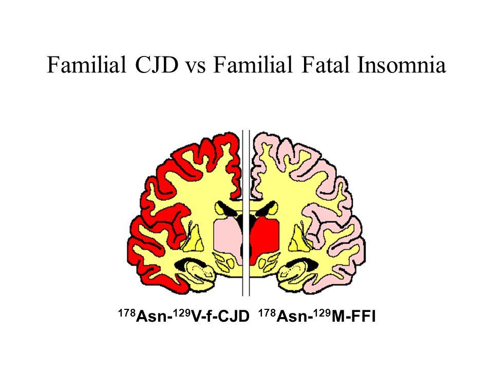 Familial CJD vs Familial Fatal Insomnia 178 Asn- 129 V-f-CJD 178 Asn- 129 M-FFI