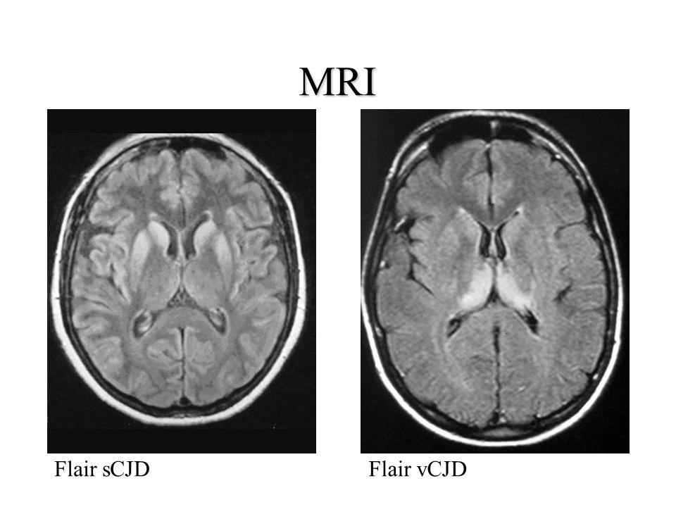 MRI Flair sCJDFlair vCJD