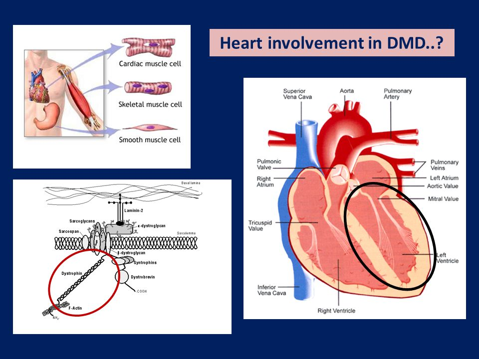 Natural History of Heart Involvement in DMD A non-invasive longitudinal study without treatments Backman & Nylander Eur Heart J 1992, 13:1239-1244 LV FS% LV EF% Most boys with DMD develop a severe, progressive form of cardiomyopathy