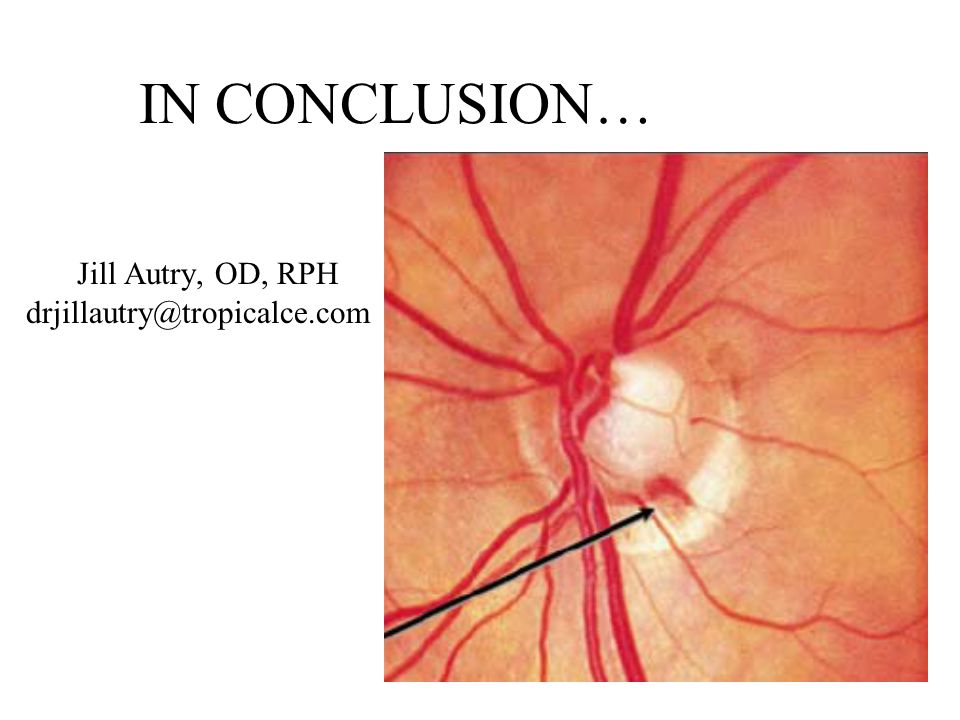 IN CONCLUSION… Jill Autry, OD, RPH drjillautry@tropicalce.com