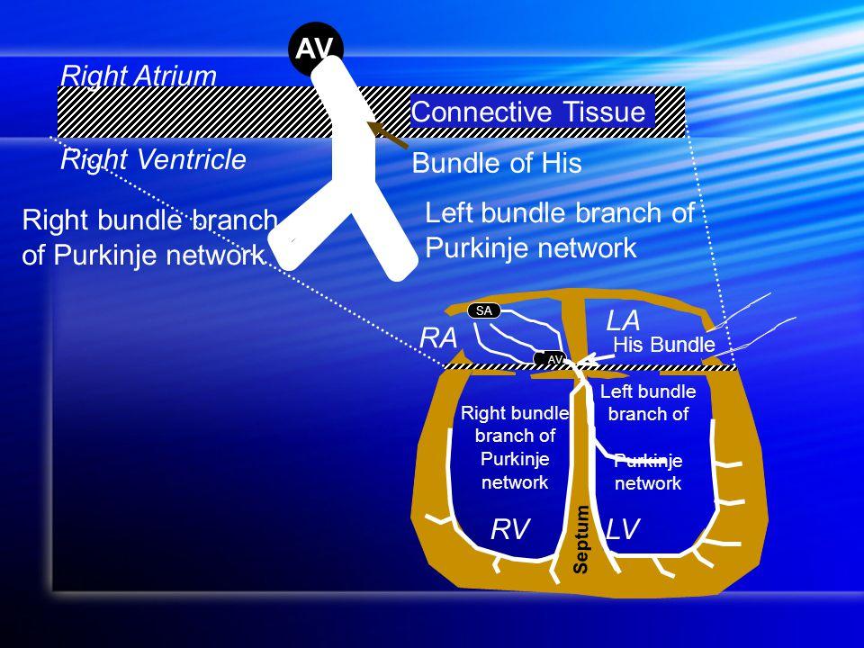 RA LA RVLV Septum SA AV Left bundle branch of Purkinje network Right bundle branch of Purkinje network Left bundle branch of Purkinje network AV Conne