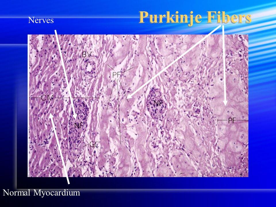Purkinje Fibers Normal Myocardium Nerves
