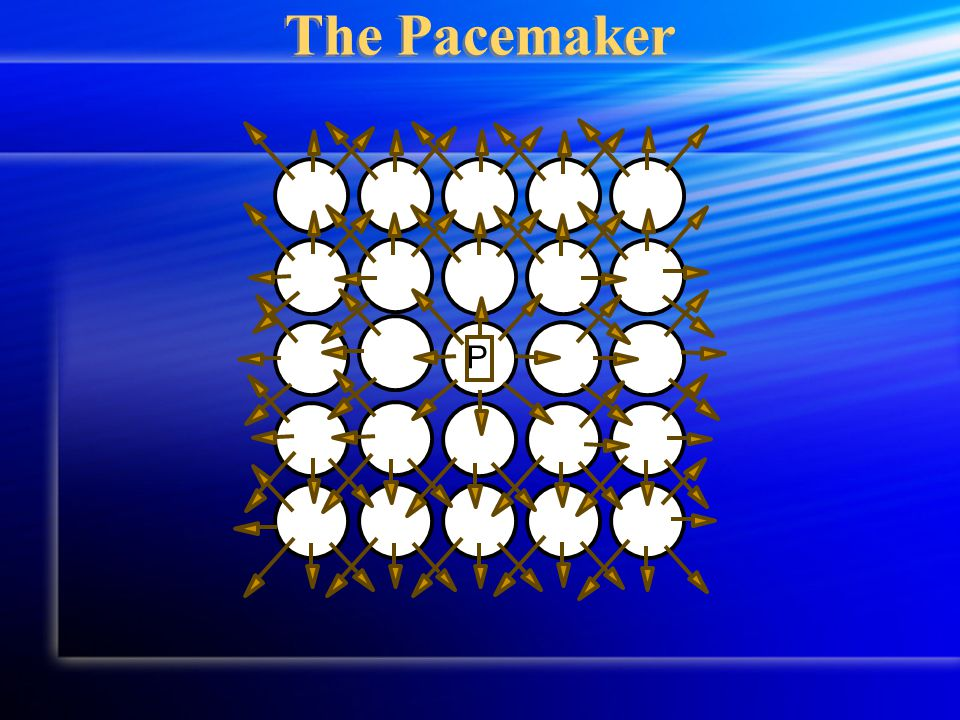 P The Pacemaker