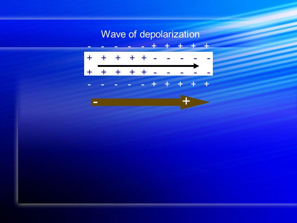 -----+++++ +++++----- Wave of depolarization +++++----- -----+++++ +-