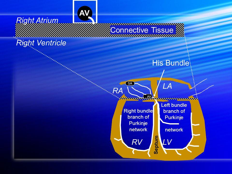 RA LA RVLV Septum SA AV Left bundle branch of Purkinje network Right bundle branch of Purkinje network His Bundle AV Connective Tissue Right Atrium Right Ventricle