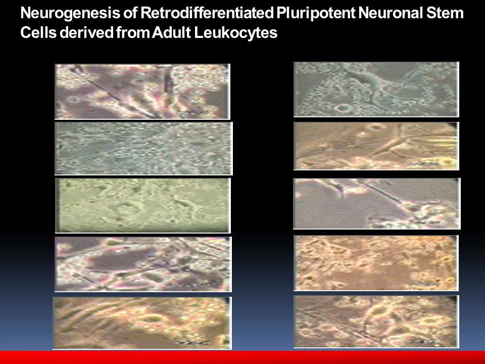 Neurogenesis of Retrodifferentiated Pluripotent Neuronal Stem Cells derived from Adult Leukocytes