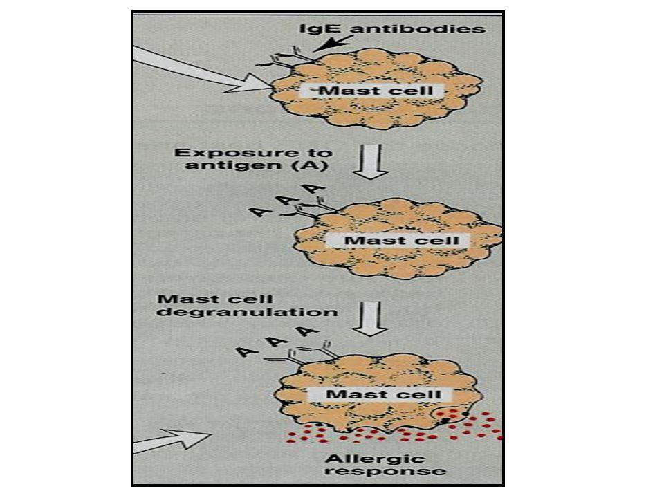 Anti-immunoglobulin E (e.g. Omalizumab) MOA: Selective anti-IgE monoclonal antibody that binds to IgE and prevents its association with IgE receptors,