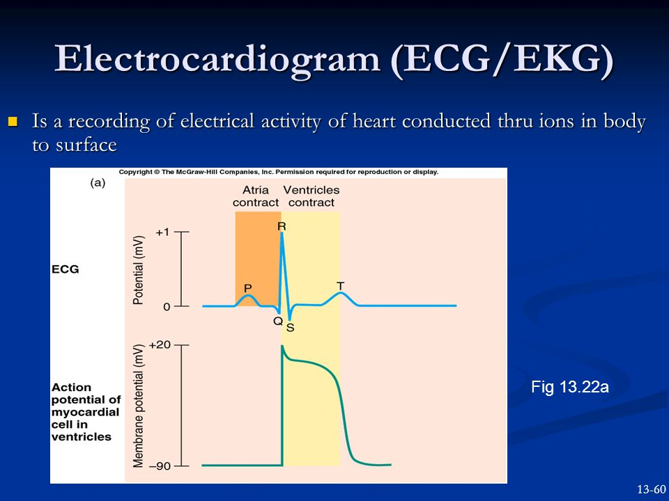 Electrocardiogram (ECG/EKG) Is a recording of electrical activity of heart conducted thru ions in body to surface Is a recording of electrical activity of heart conducted thru ions in body to surface Fig 13.22a 13-60