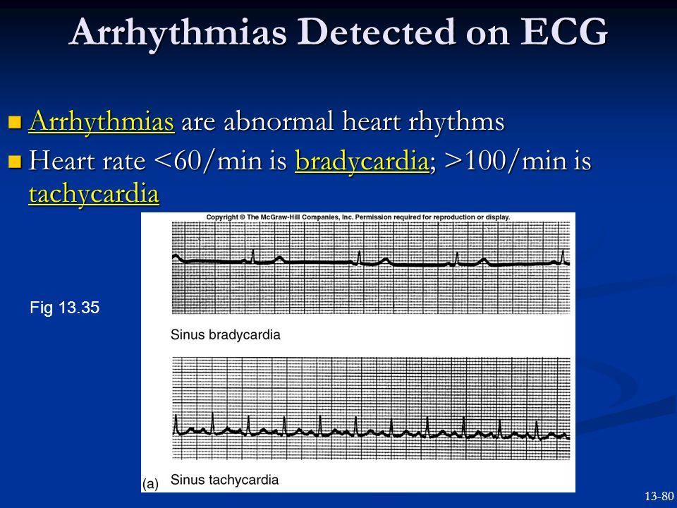 Arrhythmias Detected on ECG Arrhythmias are abnormal heart rhythms Arrhythmias are abnormal heart rhythms Heart rate 100/min is tachycardia Heart rate 100/min is tachycardia Fig 13.35 13-80