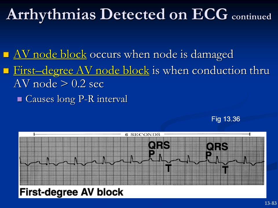 AV node block occurs when node is damaged AV node block occurs when node is damaged First–degree AV node block is when conduction thru AV node > 0.2 sec First–degree AV node block is when conduction thru AV node > 0.2 sec Causes long P-R interval Causes long P-R interval Arrhythmias Detected on ECG continued Fig 13.36 13-83