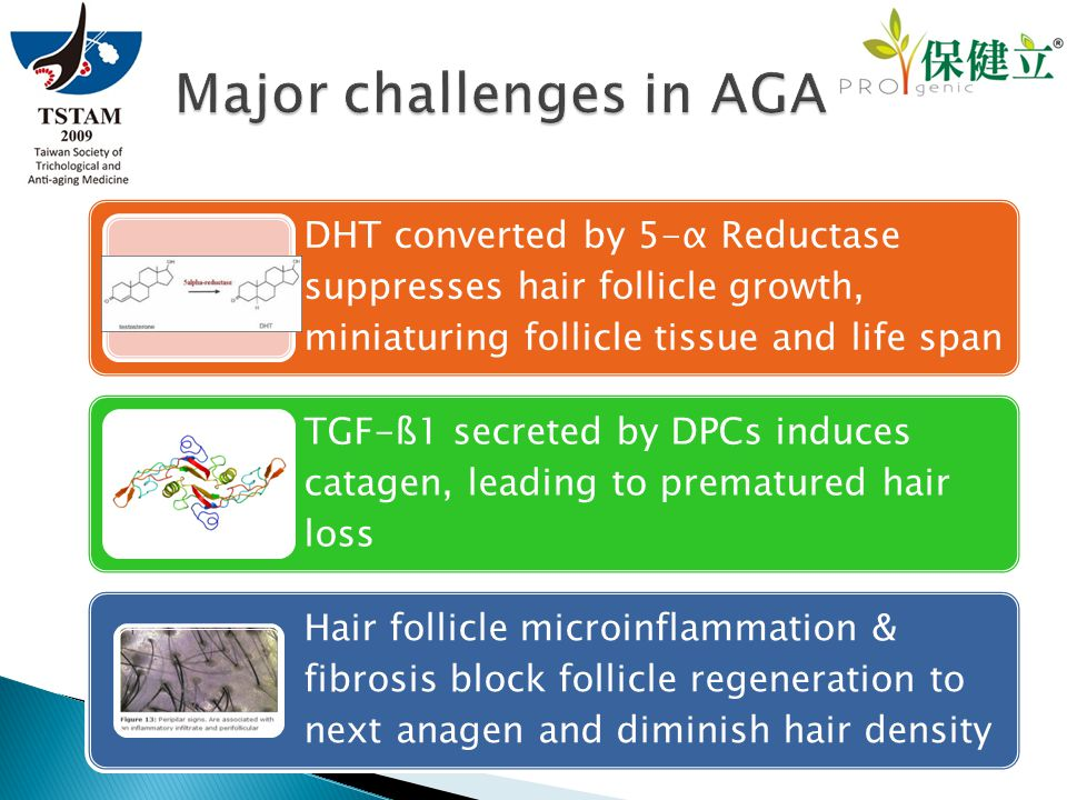 DHT converted by 5-α Reductase suppresses hair follicle growth, miniaturing follicle tissue and life span TGF-ß1 secreted by DPCs induces catagen, lea