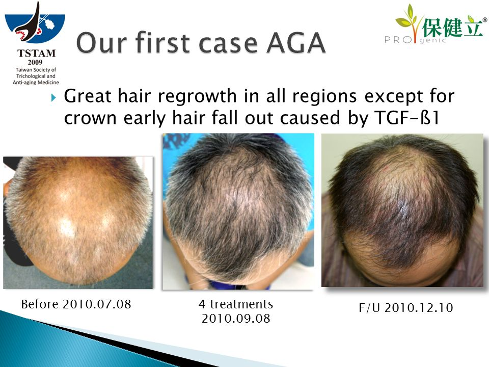  Great hair regrowth in all regions except for crown early hair fall out caused by TGF-ß1 F/U 2010.12.10 Before 2010.07.08 4 treatments 2010.09.08