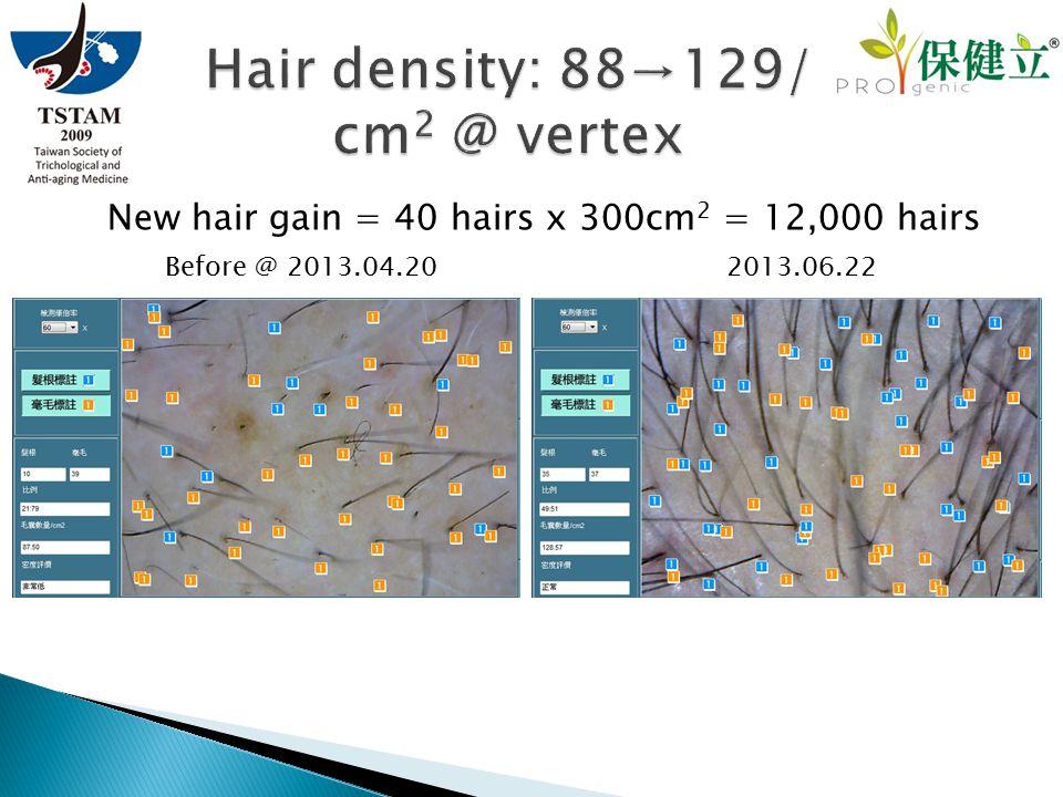 New hair gain = 40 hairs x 300cm 2 = 12,000 hairs
