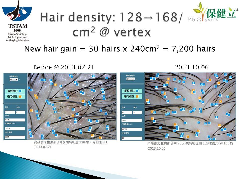 New hair gain = 30 hairs x 240cm 2 = 7,200 hairs Before @ 2013.07.21 2013.10.06