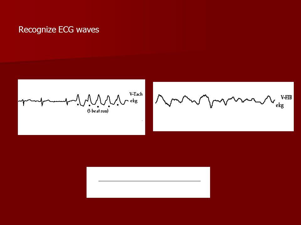 Recognize ECG waves