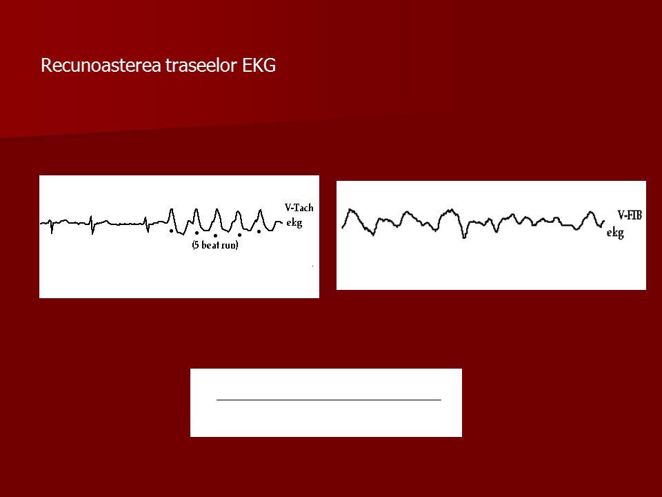 Recunoasterea traseelor EKG