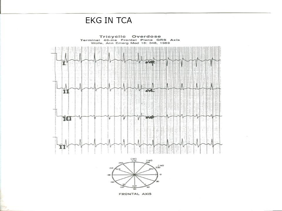 EKG EKG IN TCA