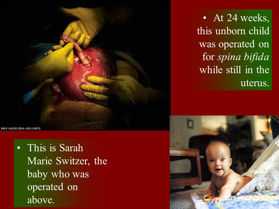 At 24 weeks, this unborn child was operated on for spina bifida while still in the uterus.