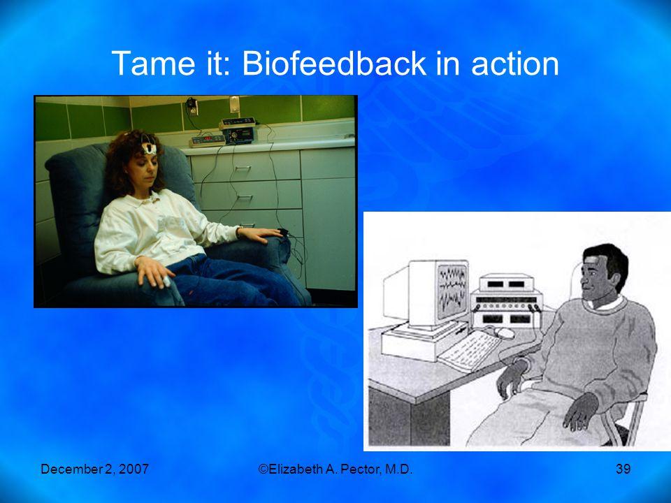December 2, 2007©Elizabeth A. Pector, M.D.39 Tame it: Biofeedback in action