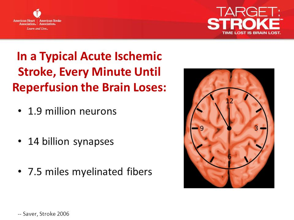 Intravenous rt-PA is recommended for selected patients who may be treated within 3 hours of onset of ischemic stroke (Class I Recommendation, Level of Evidence A).