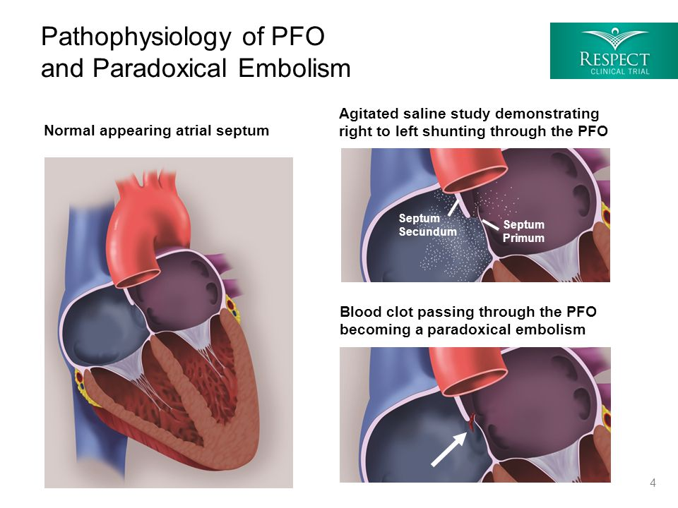 Pathophysiology of PFO and Paradoxical Embolism Normal appearing atrial septum Septum Secundum Septum Primum Agitated saline study demonstrating right to left shunting through the PFO Blood clot passing through the PFO becoming a paradoxical embolism 4