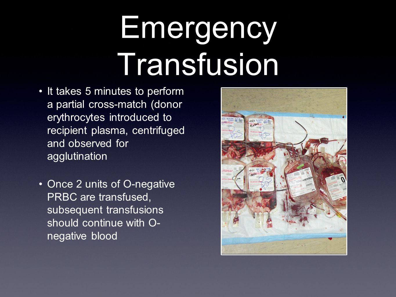 Emergency Transfusion It takes 5 minutes to perform a partial cross-match (donor erythrocytes introduced to recipient plasma, centrifuged and observed for agglutination Once 2 units of O-negative PRBC are transfused, subsequent transfusions should continue with O- negative blood