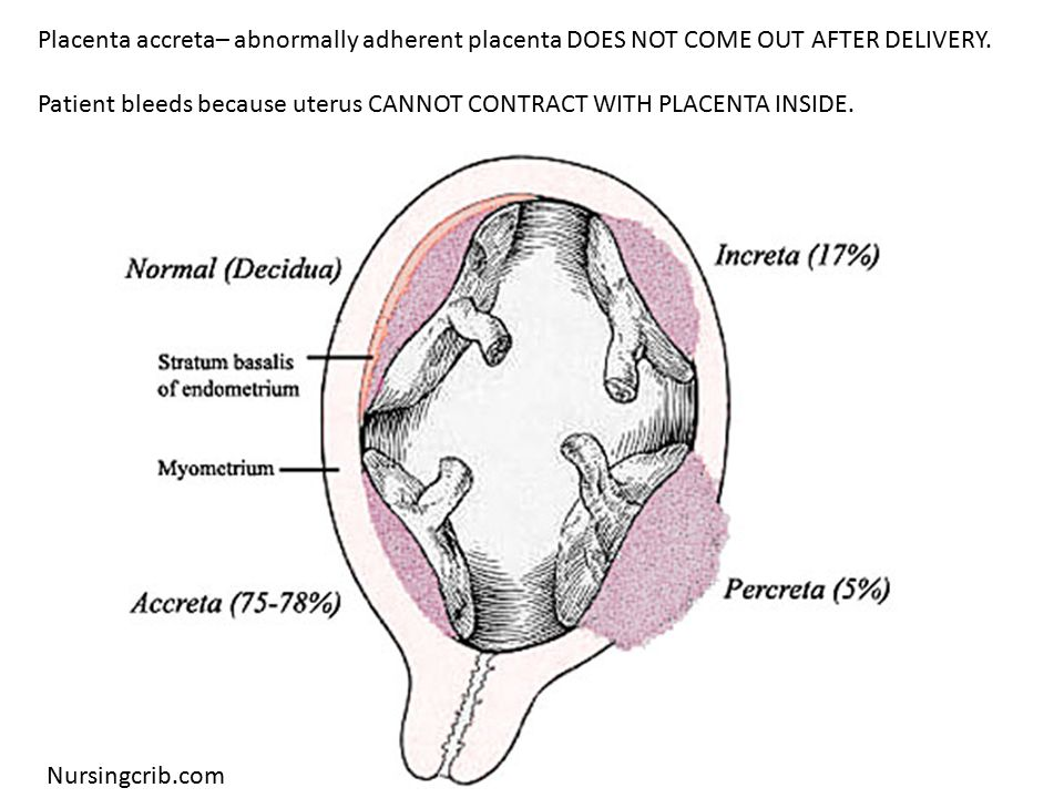 Nursingcrib.com Placenta accreta– abnormally adherent placenta DOES NOT COME OUT AFTER DELIVERY.