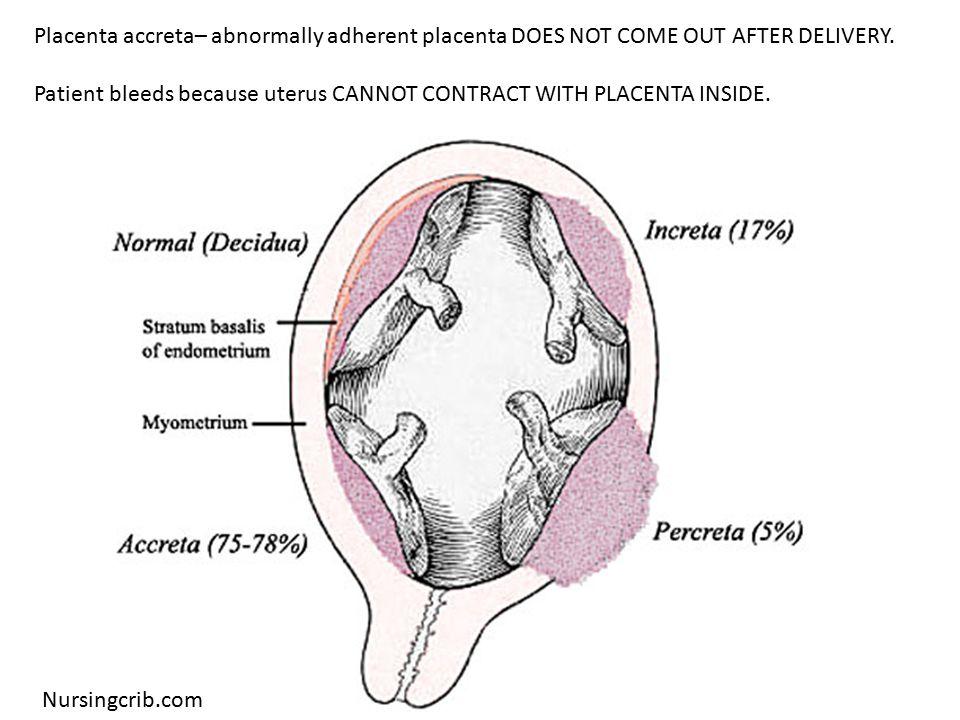Placenta accreta with bladder invasion (MRI scan)