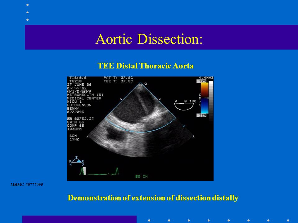 Aortic Dissection: MHMC #0777095 Demonstration of extension of dissection distally TEE Distal Thoracic Aorta
