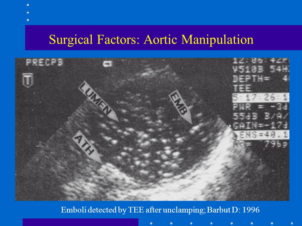 Surgical Factors: Aortic Manipulation Emboli detected by TEE after unclamping; Barbut D: 1996