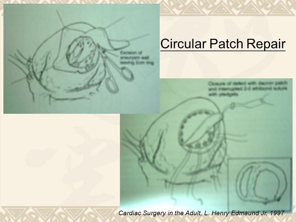 Circular Patch Repair Cardiac Surgery in the Adult, L. Henry Edmaund Jr, 1997