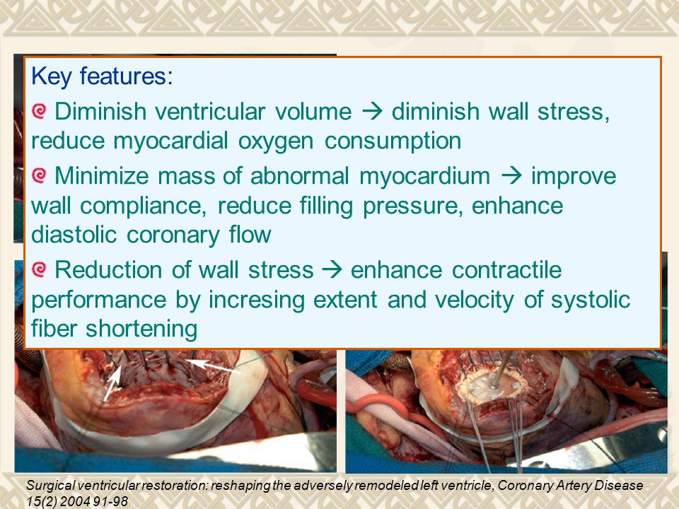 Surgical ventricular restoration: reshaping the adversely remodeled left ventricle, Coronary Artery Disease 15(2) 2004 91-98 Key features: Diminish ventricular volume  diminish wall stress, reduce myocardial oxygen consumption Minimize mass of abnormal myocardium  improve wall compliance, reduce filling pressure, enhance diastolic coronary flow Reduction of wall stress  enhance contractile performance by incresing extent and velocity of systolic fiber shortening