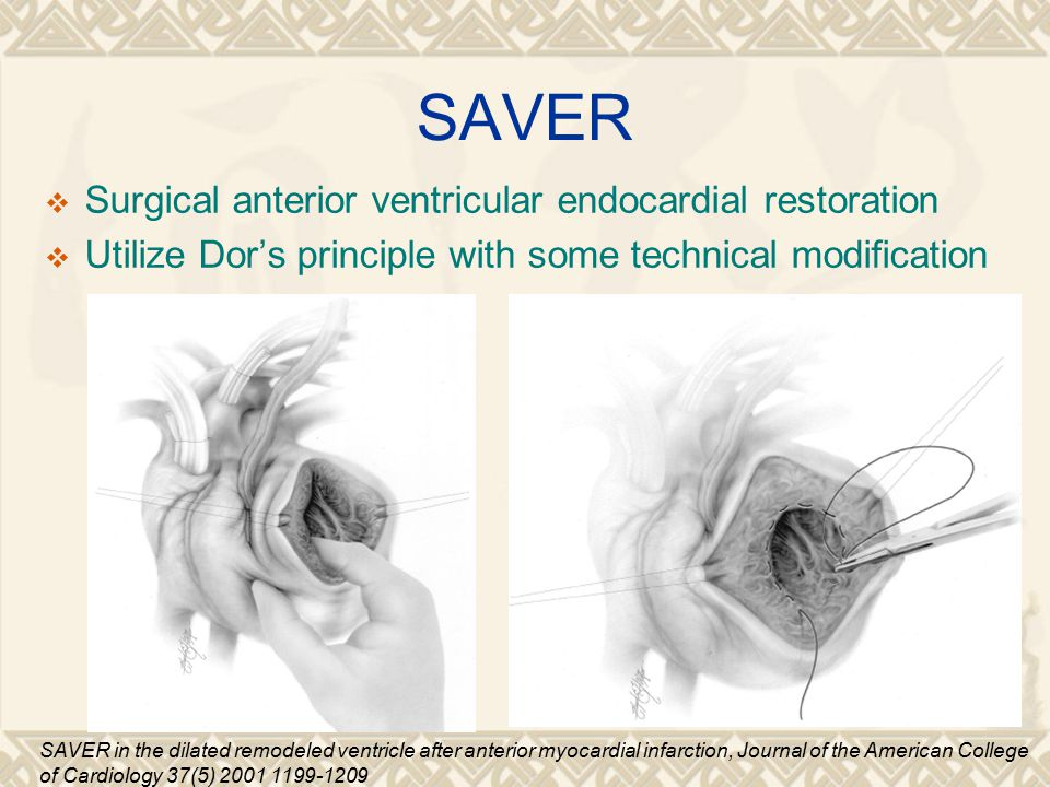 SAVER  Surgical anterior ventricular endocardial restoration  Utilize Dor's principle with some technical modification SAVER in the dilated remodeled ventricle after anterior myocardial infarction, Journal of the American College of Cardiology 37(5) 2001 1199-1209