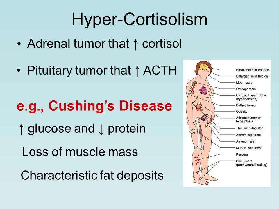 Hyper-Cortisolism Adrenal tumor that ↑ cortisol Pituitary tumor that ↑ ACTH e.g., Cushing's Disease ↑ glucose and ↓ protein Loss of muscle mass Characteristic fat deposits