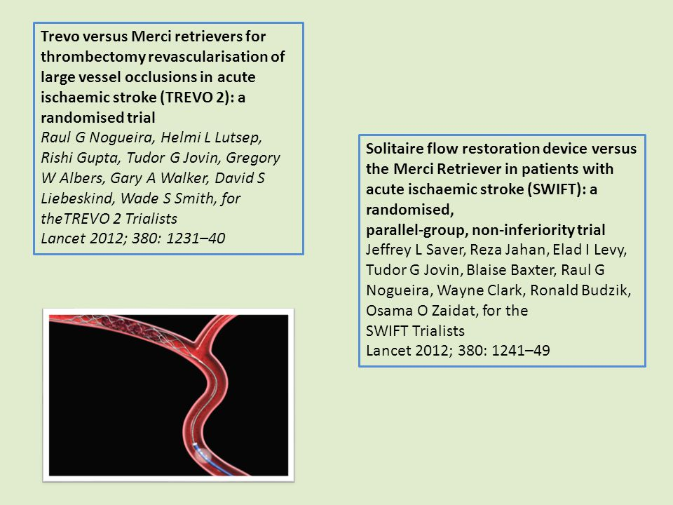 Trevo versus Merci retrievers for thrombectomy revascularisation of large vessel occlusions in acute ischaemic stroke (TREVO 2): a randomised trial Ra