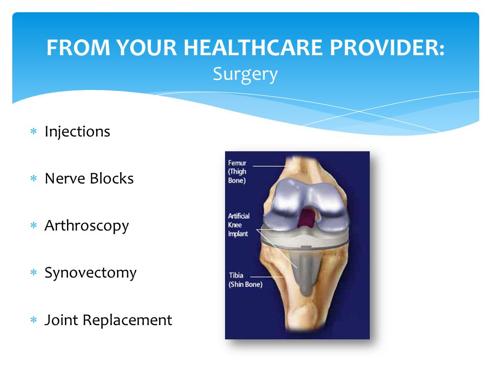  Injections  Nerve Blocks  Arthroscopy  Synovectomy  Joint Replacement FROM YOUR HEALTHCARE PROVIDER : Surgery