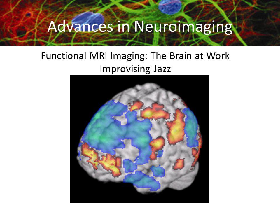 Functional MRI Imaging: The Brain at Work Improvising Jazz Advances in Neuroimaging